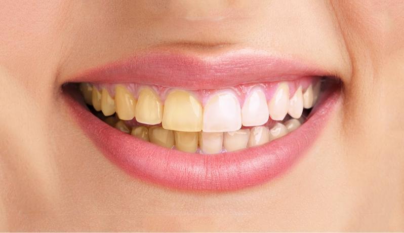 مأكولات ومشروبات تمنحك أسنانا بيضاء 52ca3db63e36d523886a