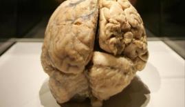 صورة دماغ